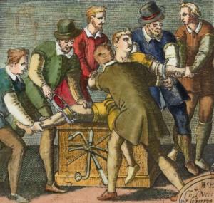 Amputation mit einem Arzt und fünf Assistenten